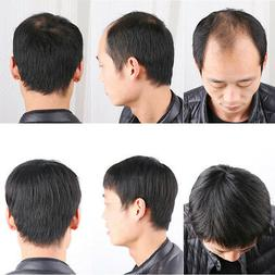 Men's 100% Real Human Hair Topper Toupee Clip Hairpiece Top